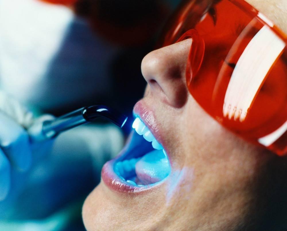 otbelivanie-zubov-sistemoj-beyond-polus