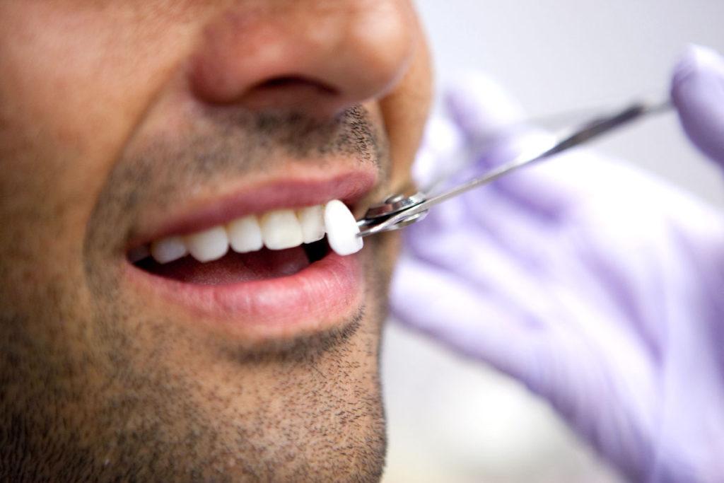 ustanovka-vinirov-na-zubi