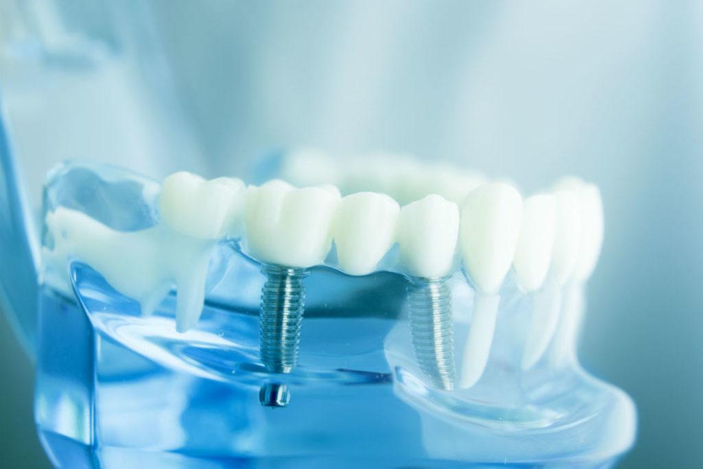 vse-ob-implantatsii-zubov