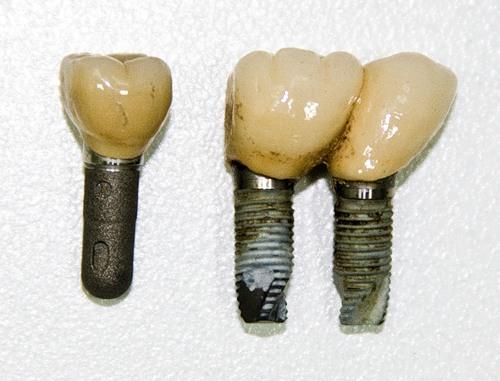 pochemu-ottorgautsya-ili-ne-prizhivautsia-implanti