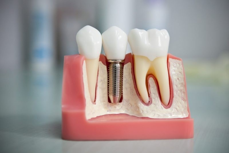 zubnie-koronki-osnovnie-raznovidnosti