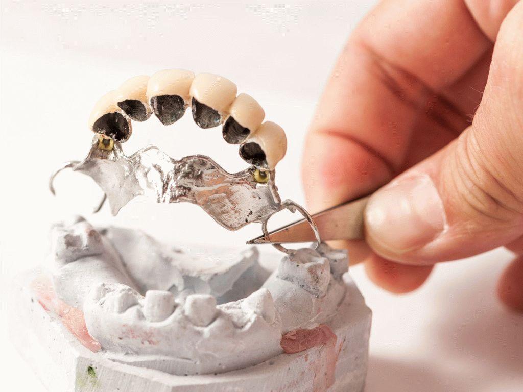 zachem-delat-protezirovanie-zubov