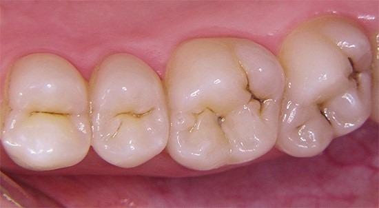 кариес на зубах при беременности