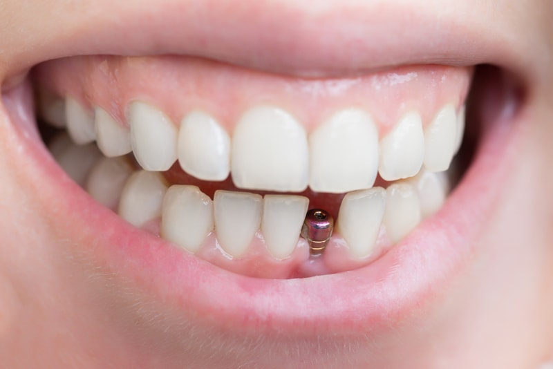 bolno_li_vstavlyzt_zubnoi_implant
