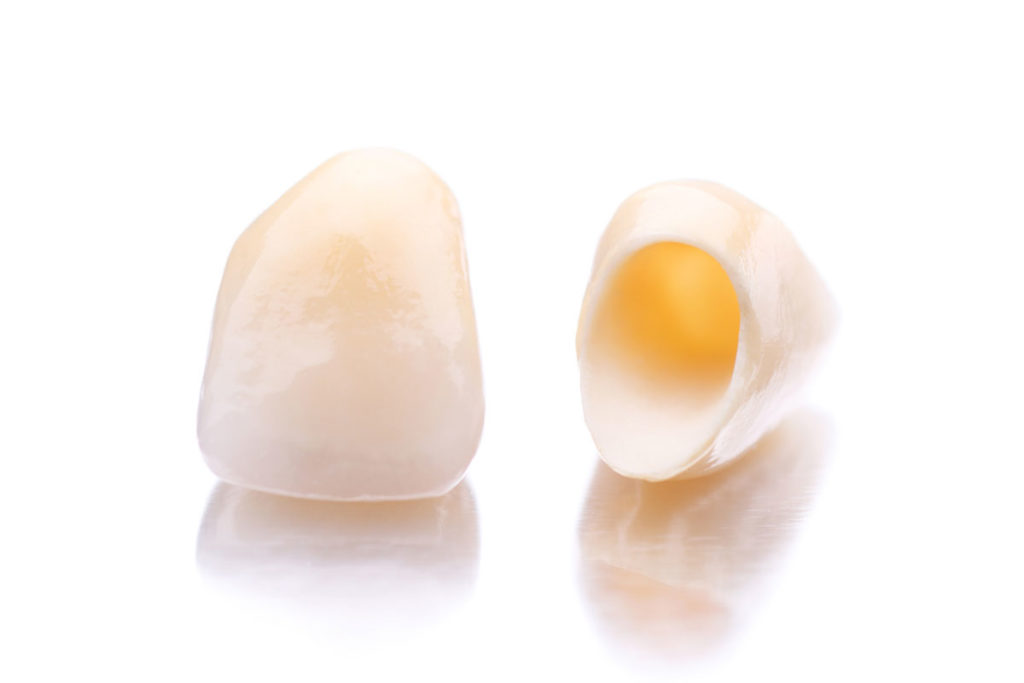 zubnie-koronki- za-i-protiv