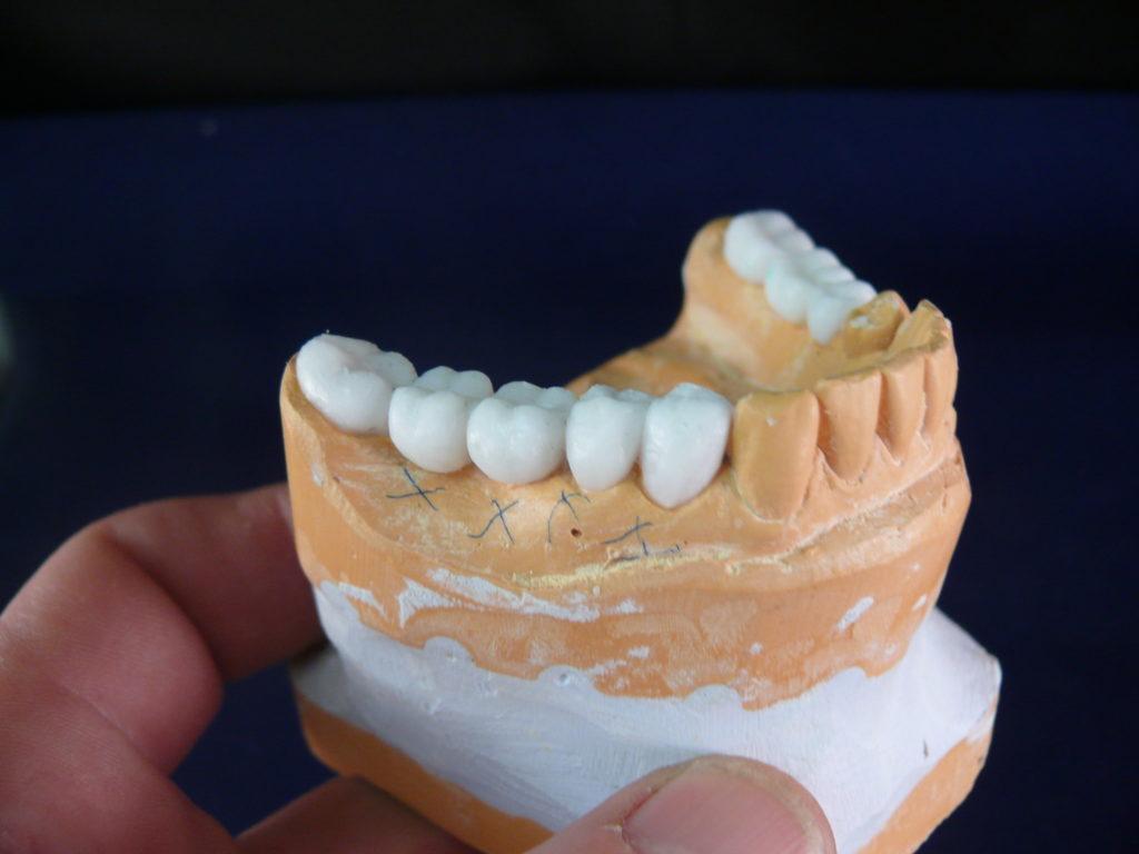 zubnie-koronki-materiali-i-vidi
