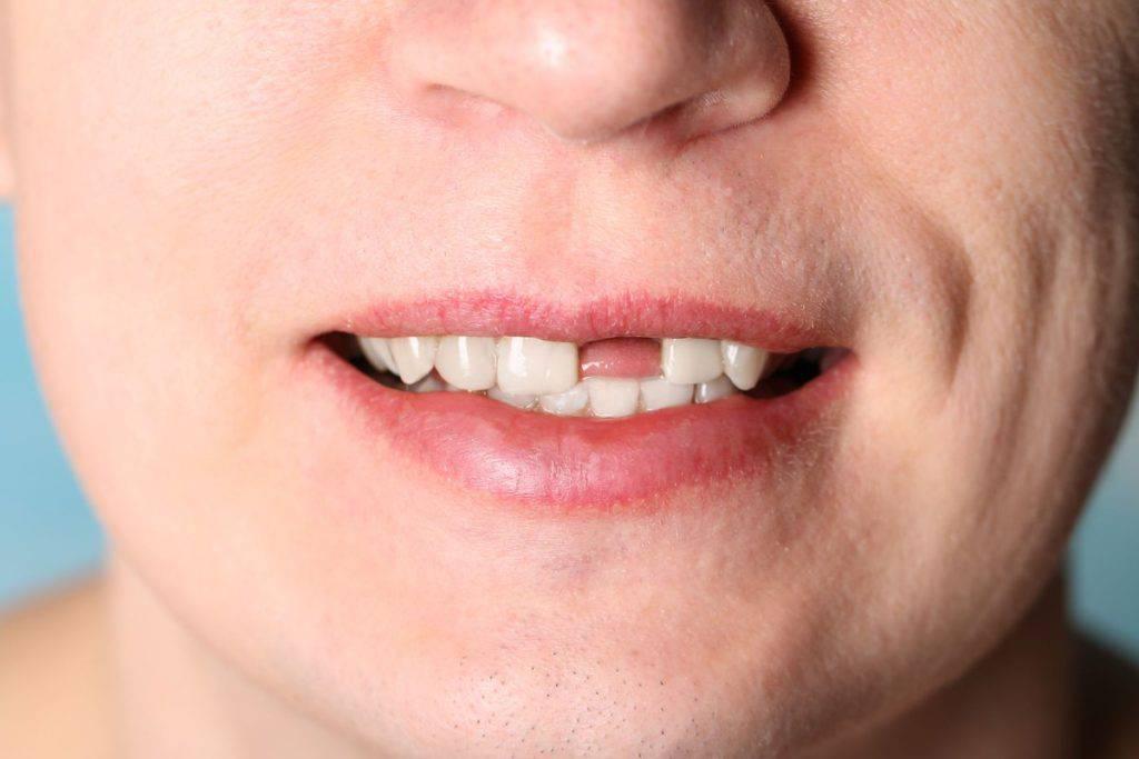 отсутсвие зубов фото